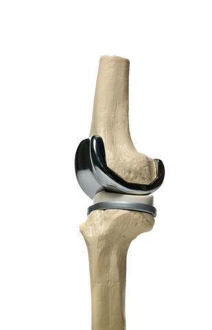 Proteza de genunchi cu cele 3 componente (femurala, tibiala, insert de polietilena).