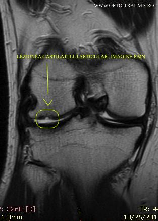 Imagine RMN - Leziunea Cartilajului Articular Genunchi.