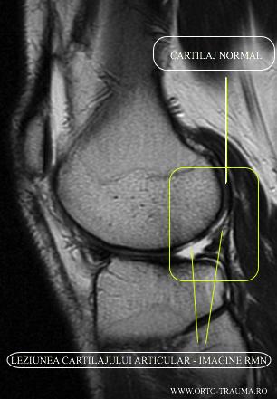 Cartilaj normal si Leziunea Cartilajului Articular Genunchi - RMN