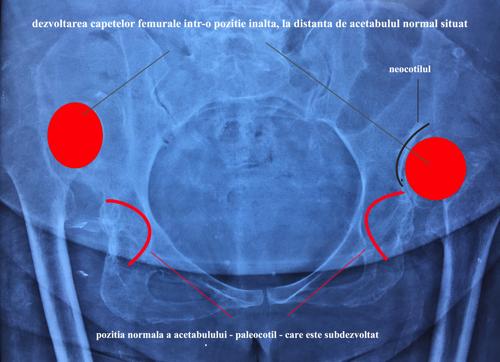 Dezvoltarea capetelor femurale intr-o pozitie inalta, la distanta de acetabulul normal situat
